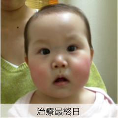 【西璃紗ちゃん治療最終日】むくみがなくなり、ほっぺたの赤みも消えました。