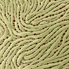 Gelbes Riff – Prunus domestica, Pollenwand, Foto: Halbritter Heidemarie, koloriert: Ulrich Silvia, 2018, 80x60 cm, Druck auf Alu