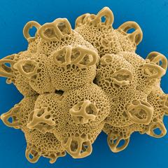 Das Pollenriff – Irlbachia sp., Polyade bestehend aus 8 Pollen-Tetraden, Foto: Halbritter Heidemarie, koloriert: Ulrich Silvia, 2018, 80x60 cm, Druck auf Alu