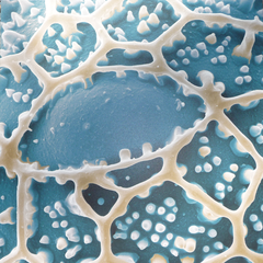 Ruellia (Pollenoberfläche), koloriertes REM Bild, 80x80cm, H.Halbritter und S.Ulrich, 2012