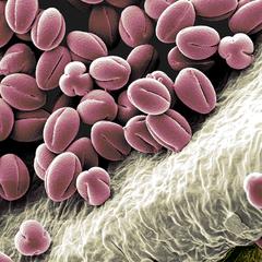 together (Ranunculus Pollen), koloriertes REM Bild, 60x80cm, 2012