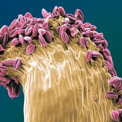 on top (Staubblatt mit Pollen), koloriertes REM Bild, 50x60cm, 2012