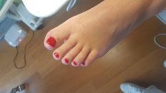 Klant is zeer tevreden met deze normaal uitziende nagel door gebruik van LCN en gemaakt door pedicure Wempe te Lelystad.
