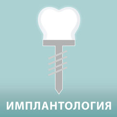 Implantologie Die Zahnkünstler Hannover