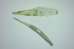 Bild 13: Zwei Blattformen des männlichen Astes.