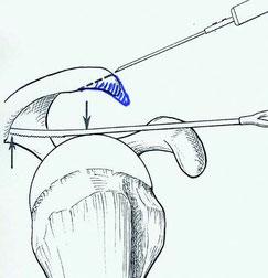 Offenes Entfernen des Hakens am Schulterdach (Acromioplastik) mittels Mini-Inzision