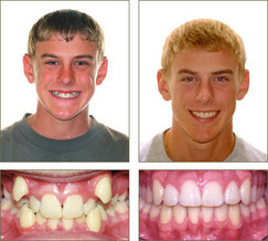 Ortodoncia en adultos.Damon.