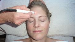 Austestung der zu behandelnden Punkte mittels Hautwiderstandsmessgerät