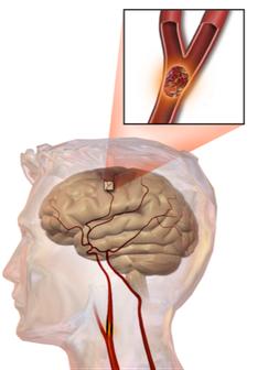An Embolic Stroke Image: Wikicommons