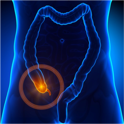 An illustration of the colon. The cecum is highlighted with the appendix projecting. The appendix is the worm-like projection.