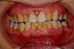 八戸市の歯医者 くぼた歯科医院 歯周病