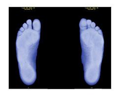 Scanner Füße in Belastung von unten