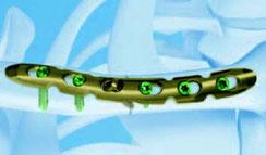 Endzustand eine Osteosynthese mit Platte und Schrauben. Diese sind meistens aus Titan.