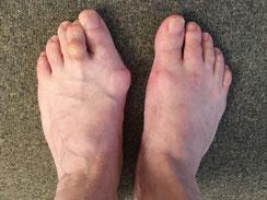 Hallus valgus, la bosse sur le pied qui se trouve sur la gauche