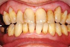 八戸市くぼた歯科医院 歯周病 ホワイトニング