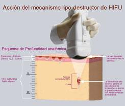 Tecnología HIFU