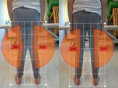 Korektywa - skolioza, płaskostopie, kolana koślawe lub szpotawe, łopatka skrzydłowata. Podoskopowe badanie stóp. Rehabilitacja Bielany, Żoliborz, Bemowo.