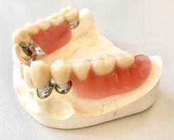 Teleskopprothese - Zahnarztpraxis & Implantologie Dr. med. dent. Malte Uhrigshardt Tornesch im Kreis Pinneberg