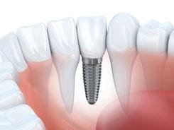 Zahnimplantat, festsitzender Zahnersatz