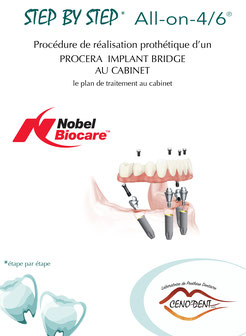 Step by Step, All on 4, Nobel Biocare, édentement total, implantologie, redonner le sourire.