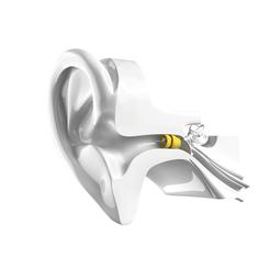 Le seul appareil auditif réellement invisible à Saint-Nazaire