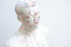 Akupunktur Balingen Naturheilpraxis Heilpraktiker