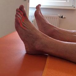 abgeflachtes Fußgewölbe