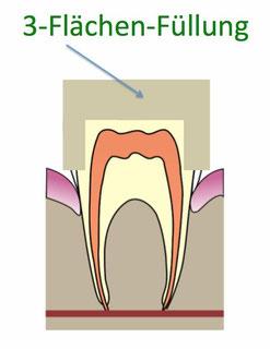 3 Flächen Zahnfüllung