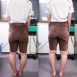 産後骨盤調整の例1(左:施術前、右:施術後)