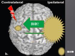脳梗塞 半球間抑制 片麻痺