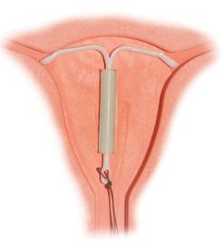 図1 子宮に装着されたミレーナ  (Wikipediaより抜粋)