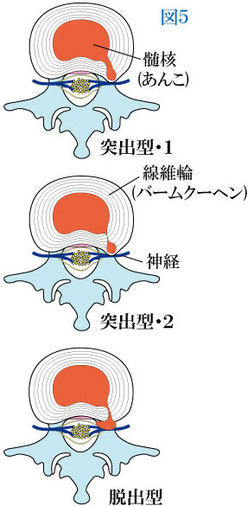 椎間板ヘルニアのタイプ
