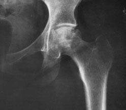 Röntgenbild einer Hüfte