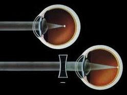 Esempio di correzione della miopia con lenti negative.