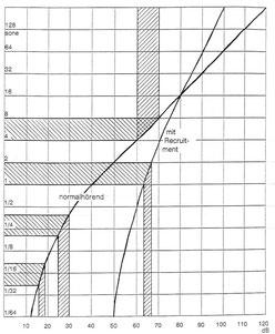 Diagramm steilere Lautheits-Empfindungskurve bei Recruitment