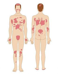 Psoriasi: cause sintomi e cure. Lo Psomassage