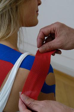 Unterstützende Behandlung mit Kinesiotaping am Beispiel der Schulter
