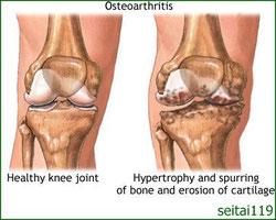 変形性膝関節症の原因には年齢,使いすぎ,けが,肥満があります