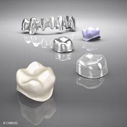 Verblendete Metall-Keramik-Krone