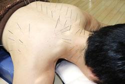 首こり肩こりの鍼施術