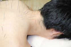 首肩への鍼