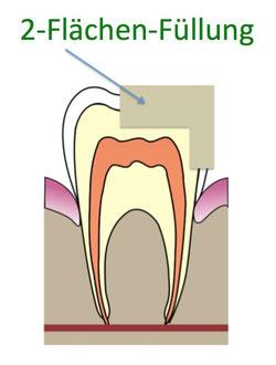 2 Flächen Zahnfüllung