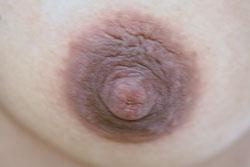 Die chirurgische Operation auf die Brust