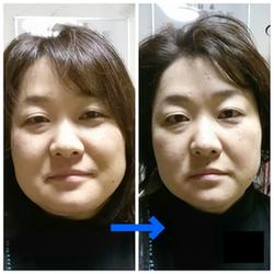 小顔矯正による見本2