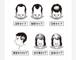 ※画像は、私の著書「世界一簡単な髪が増える方法」のイラストより抜粋