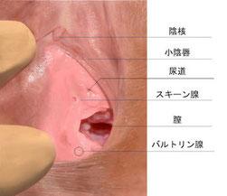 バルトリン腺炎,原因,しこり,激痛,できもの,外陰部