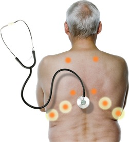 """Bild Intermune """"how to diagnose IPF"""" 2014"""