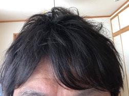 髪型なんて他人は気にしていないはず(写真は最近、魚の目ができ、皮膚科で激痛治療を受けてきたT氏)