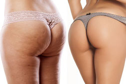 Miss Derriere Organic Cellulite cream. See the difference!