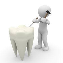 ein Männchen hämmert an einen wurzelbehandelten Zahn